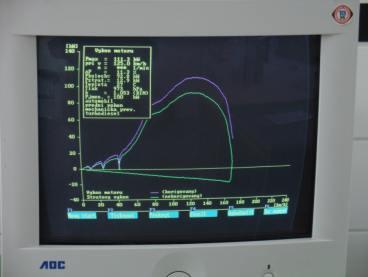 Obrazovka s křivkou výkonu při měření výkonu prováděném v Srba servisu